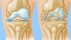 آرتروز باعث بزرگ شدن سطح بیرونی می شود