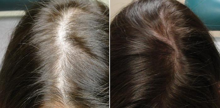 تفاوت کاشت مو با روش پی آر پی