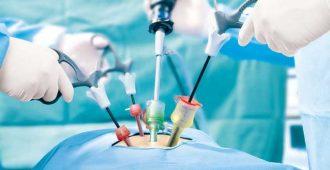 درمان ناباروری با لاپاراسکوپی
