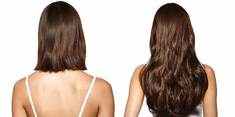 راه هایی برای رشد مو