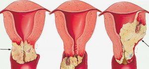 سرطان واژن