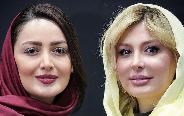 عمل های جراحی زیبایی بازیگران