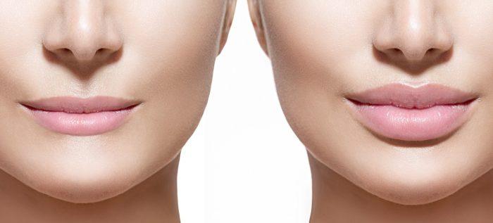 3 راه افزایش سایز لب